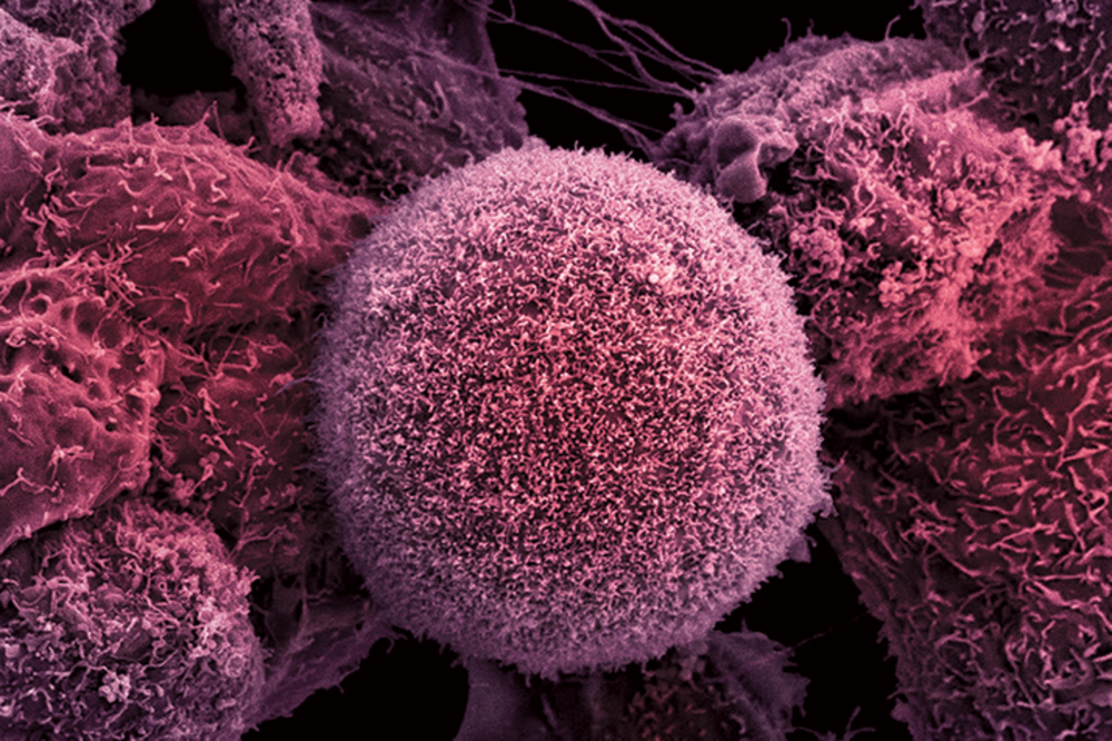High Hopes for Pancreatic Cancer Urine Test